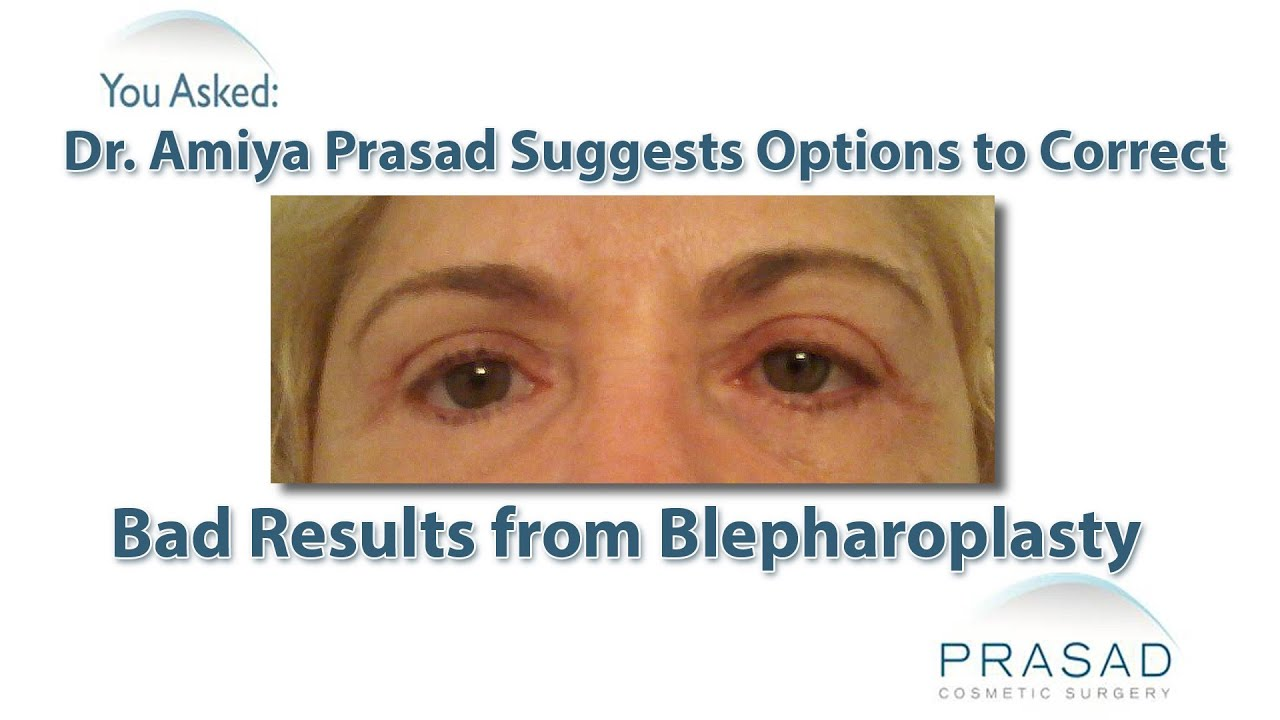 How to Correct Drooping Lower Eyelids Caused by Previous ...
