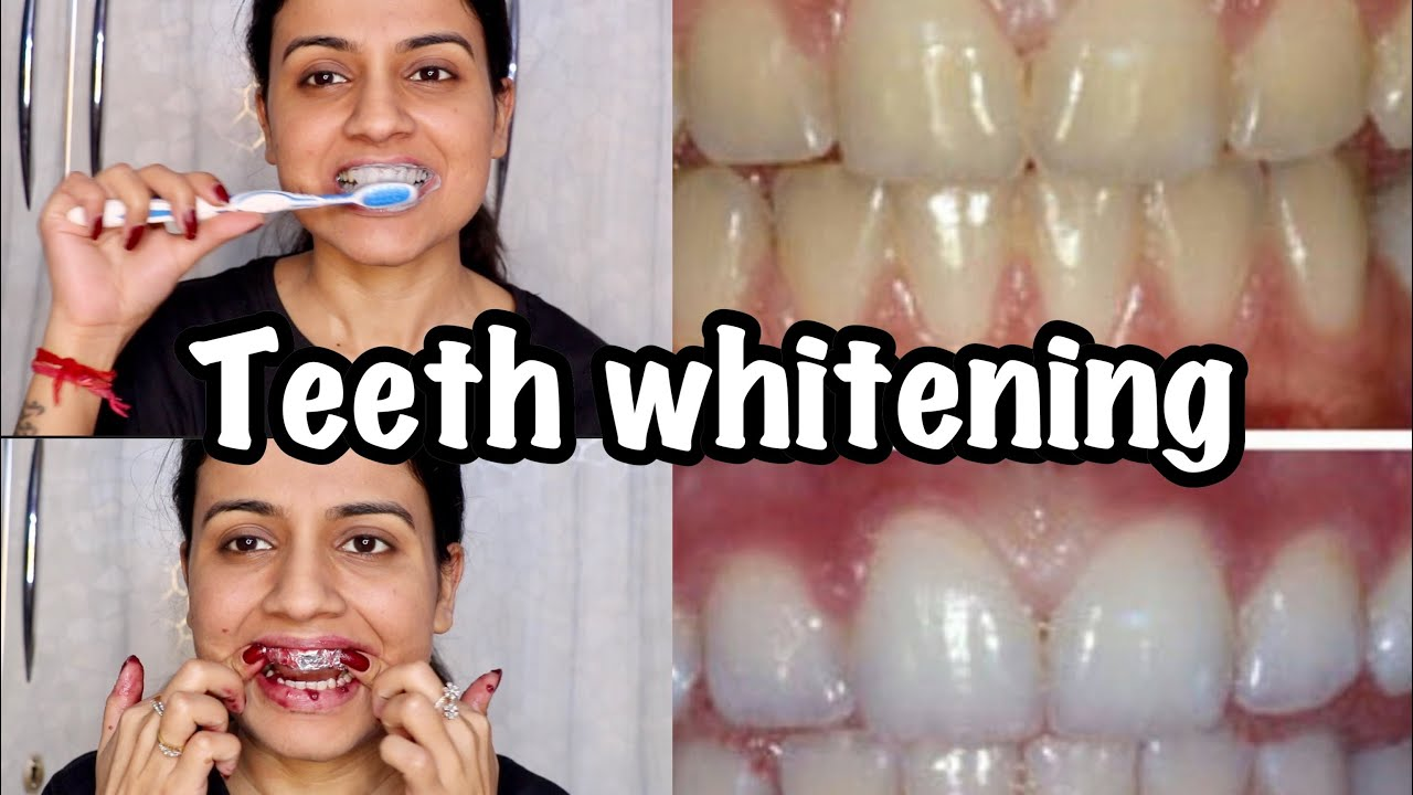 Teeth Whitening At Home How To Whiten Teeth At Home In Hindi