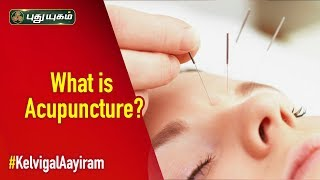How Does Acupuncture Work? | Kelvigal Aayiram | 28/09/2019 | PuthuyugamTV