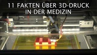 11 Fakten über 3D-Druck in der Medizin