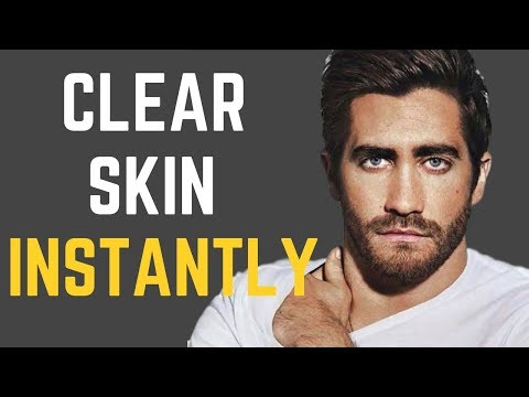 How to Have Clear Skin FAST
