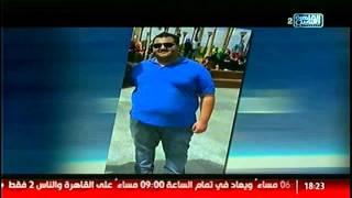محمد عبدالله حسن حالة تعانى من السمنة المفرطة: كنت فاقد الأمل!! #القاهرة_والناس