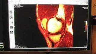 Home MRI of my knee