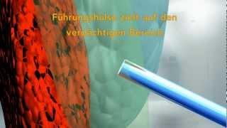 prostata psa test kosten)
