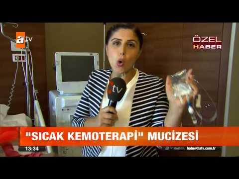 Sıcak Kemoterapi Mucizesi - Atv Gün Ortası Bülteni