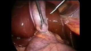 видео Холецистит, или воспаление жёлчного пузыря