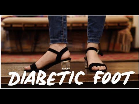 diabetic-foot-👣