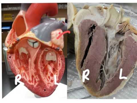 Sheep Heart Dissection - Please Note Corrections In Description.