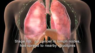 Repeat youtube video [English] MAKNA Getting to know Lung Cancer