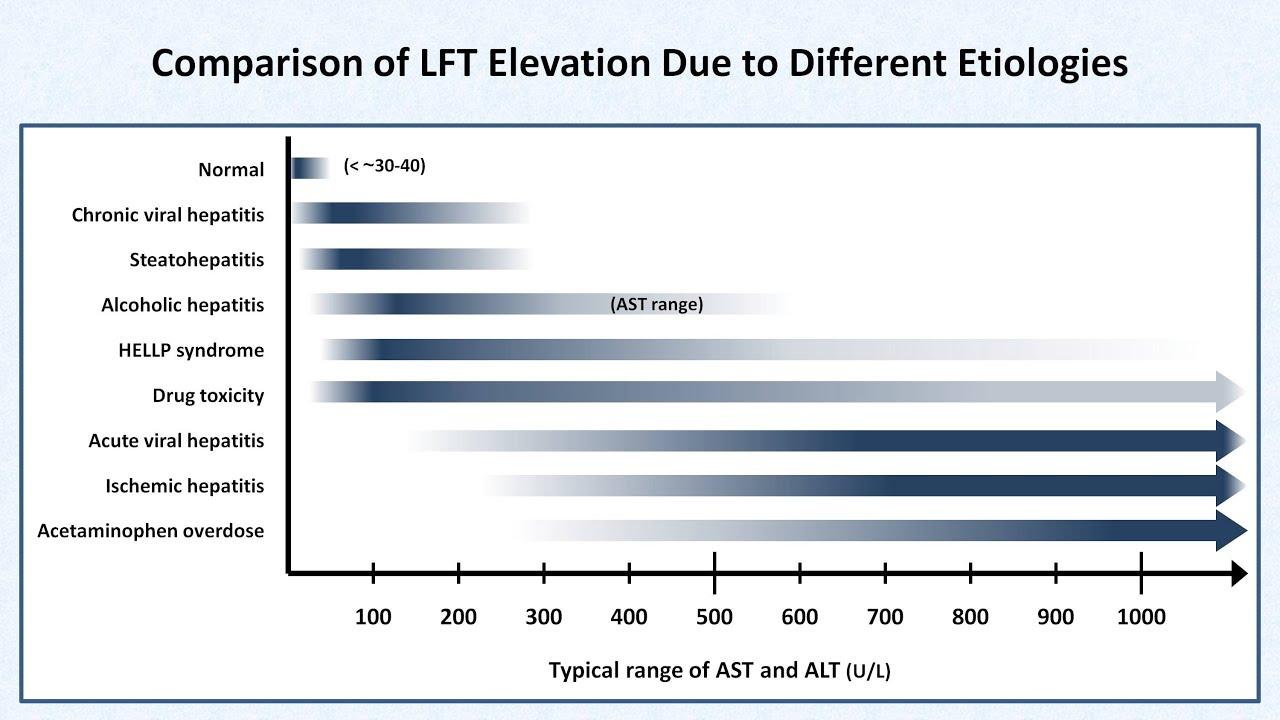 Interpretation Of Lfts Liver Function Tests Youtube