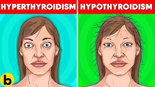 Thyroid Symptoms In Women: Signs, Causes & Treatment