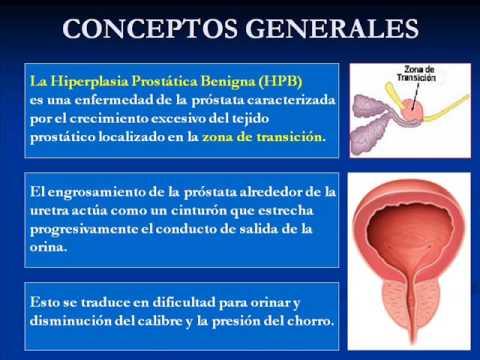 que es la enfermedad de la prostata sintomas