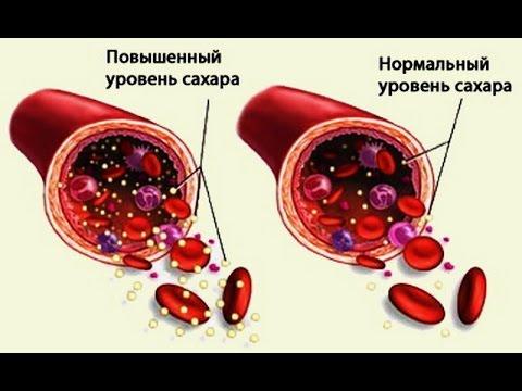 Как нормализовать сахар в крови! Уровень сахара норма| #уровеньсахара #снижатьсахар #edblack
