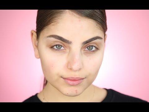Download How To Get Rid Of Mottled Skin Skin Care Secrets
