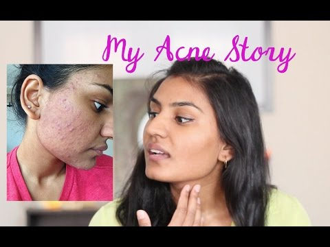 My Acne Story + Skin Care Routine