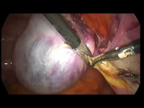 Лапароскопическое удаление придатков матки