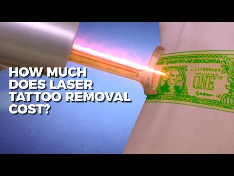 How Much Does Laser Tattoo Removal Cost? | Claudio Explains | Body Details