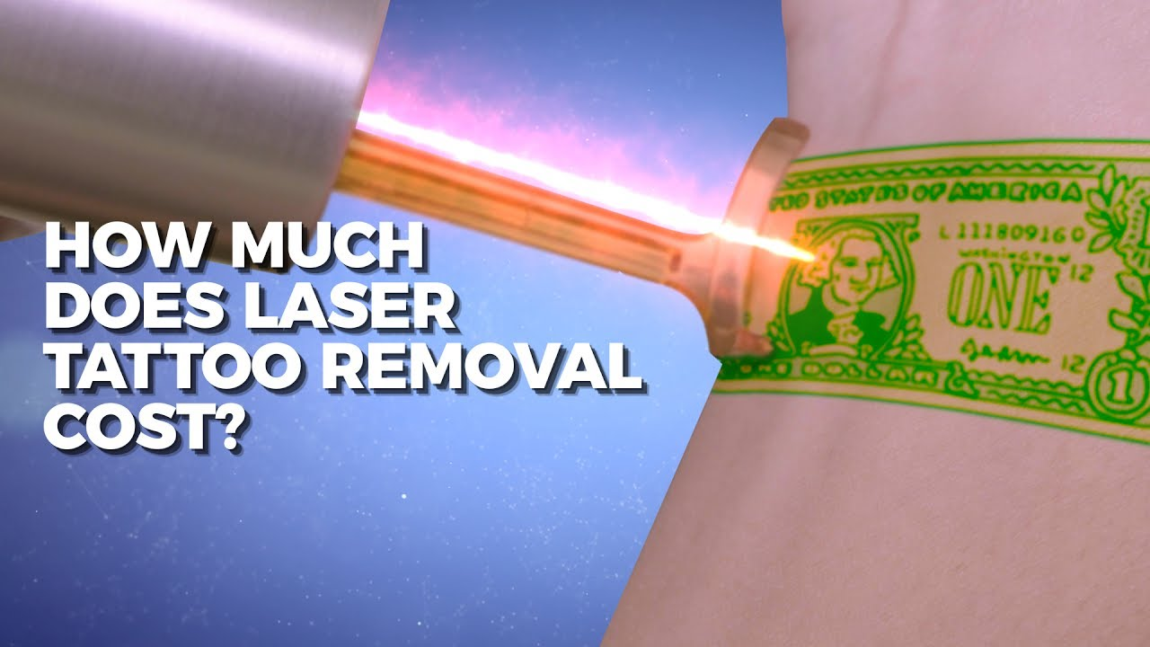 How much does laser tattoo removal cost claudio for How much does a tattoo removal cost
