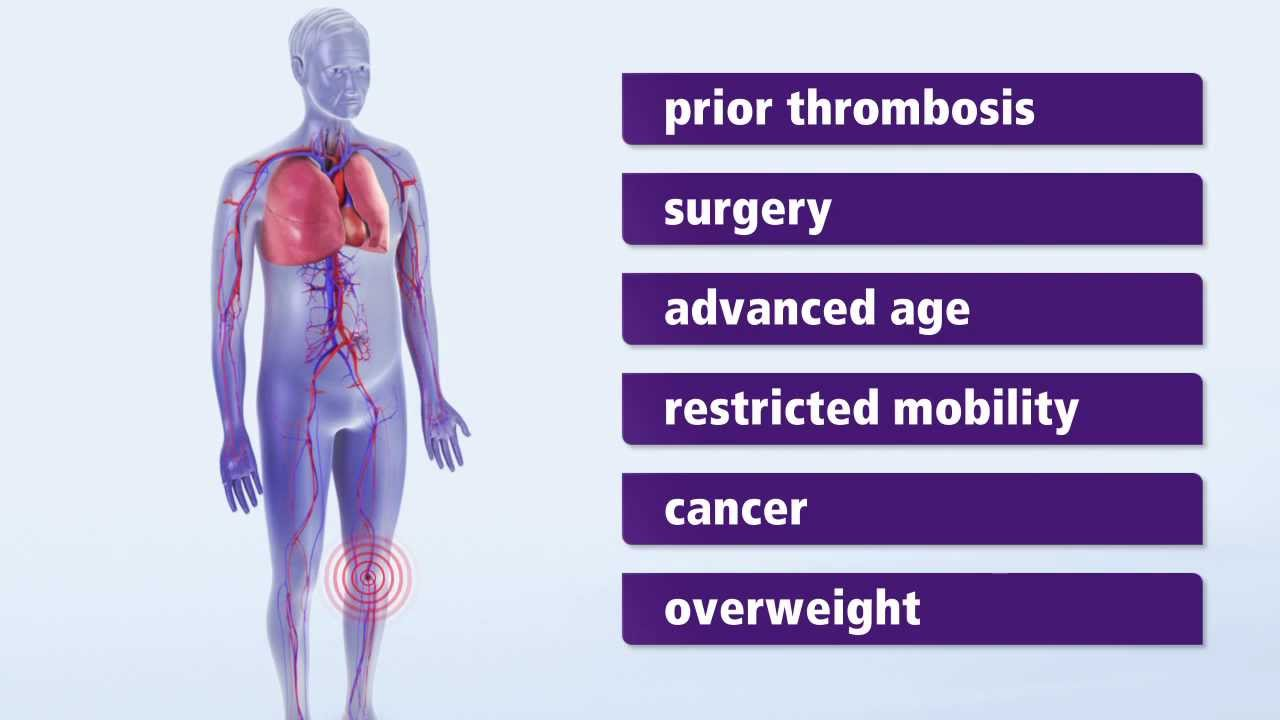 About Thrombosis: Symptoms and risk factors for deep vein thrombosis ...