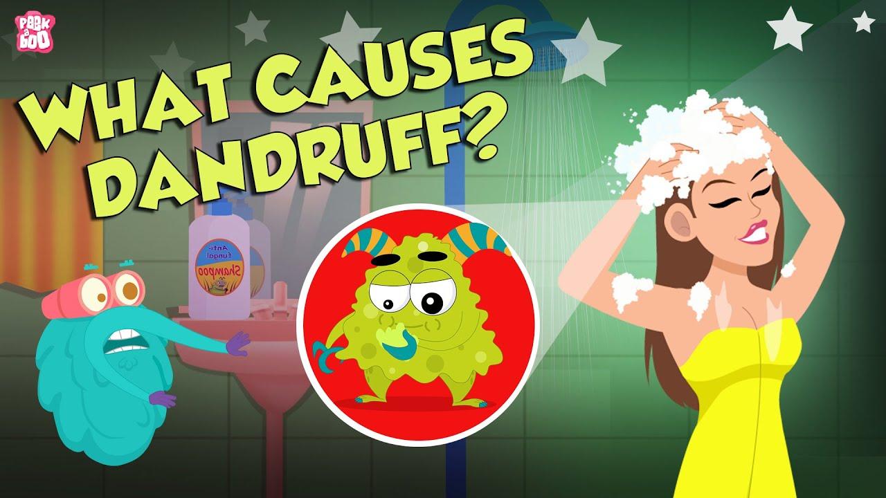 What Causes Dandruff? | How To Treat Dandruff?  | The Dr Binocs Show | Peekaboo Kidz