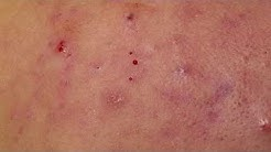 hqdefault - Acne Conglobata In Females