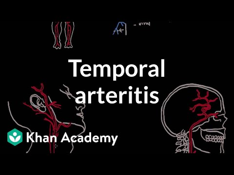Temporal arteritis | Circulatory System and Disease | NCLEX-RN | Khan Academy