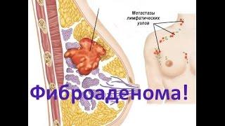 видео Аденома у женщин: симптомы, виды и лечение