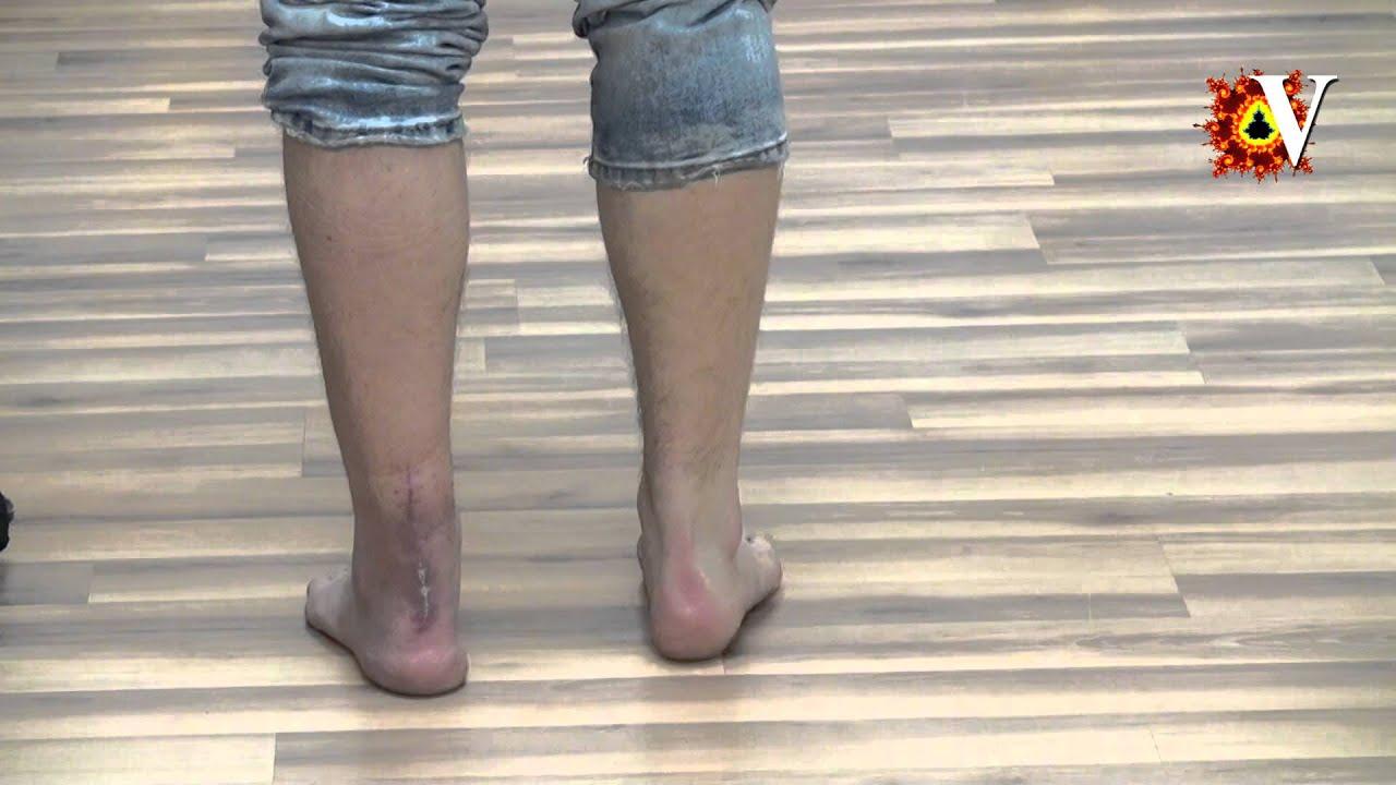 Разрыв ахилла, лечение и реабилитация. - YouTube