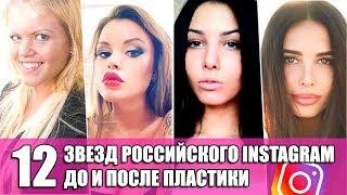 Звезды Российского инстаграм до и после пластики top Instagram russian stars