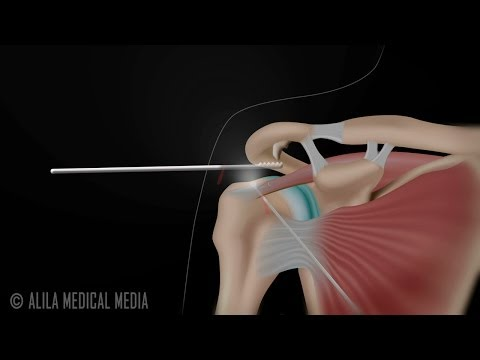 Subacromial Decompression and Arthroscopic Rotator Cuff Repair Animation.