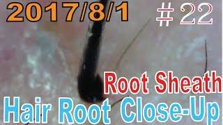 Hair Root / Root Sheath Close Up #22【 No Loss Hair Root Sheath】