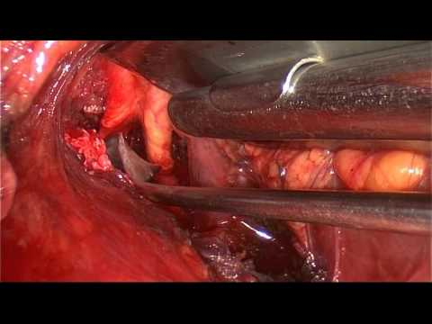 Thoracic Outlet Decompression Surgery (Transaxillary Approach)