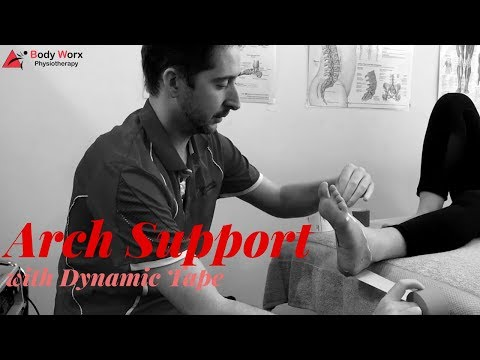 Arch support taping - BodyWorx Physiotherapy Newcastle