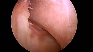 Joshua Harris, MD - Lateral ascending vessels in peripheral compartment - Hip arthroscopy