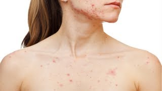 How to Get Rid of Body Acne