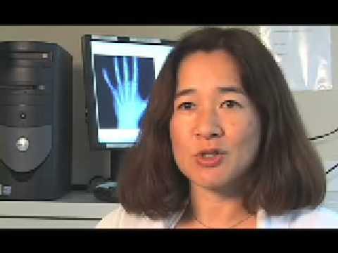 New Drugs Improve Osteoporosis Treatment