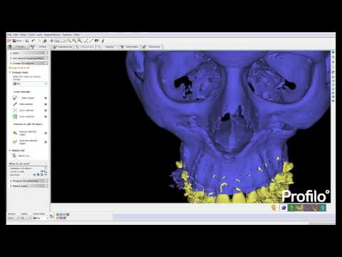 3D analysis of the face, jaws, airway and dental occlusion