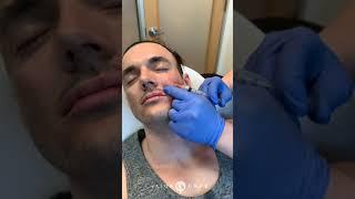 Sculptra Injections for Facial Sculpting | Collagen Stimulation | Dr. Jason Emer | LIVE