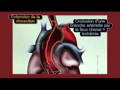 dissection aortique soulèvements sèches nausées
