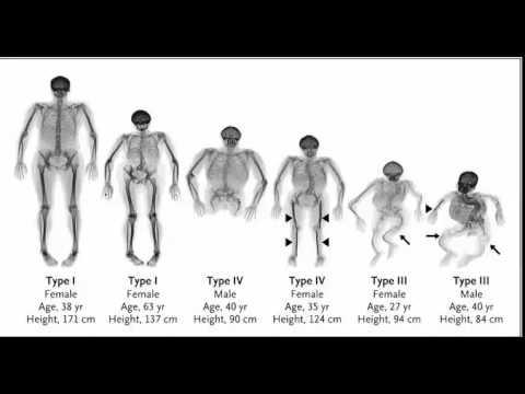 Osteogenesis imperfecta - case introduction