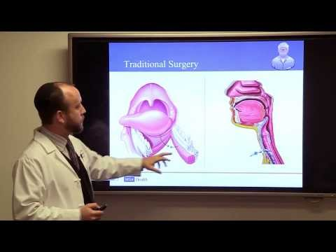 Throat Cancer: Who, Why and What Now? #UCLAMDChat - Abie Mendelsohn, MD   UCLA Health