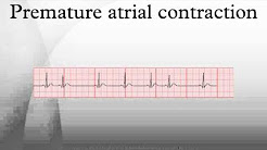 popular premature ventricular contraction atrial premature complex