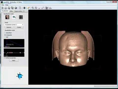 Invesalius Free 3d Medical Imaging Reconstruction