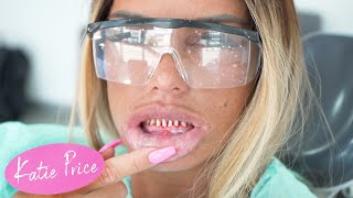 KATIE PRICE: TEETH RECONSTRUCTION (HORRIFIC!)