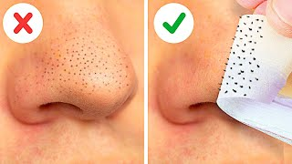 22 EASY WAYS TO REMOVE BLACKHEADS FAST || FACE MASKS, NATURAL BEAUTY HACKS