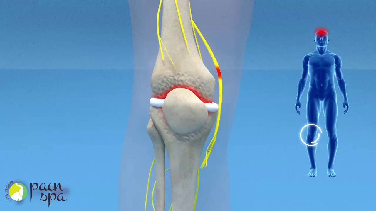 COOLIEF: Genicular nerve block and radiofrequency of the Knee Joint ...