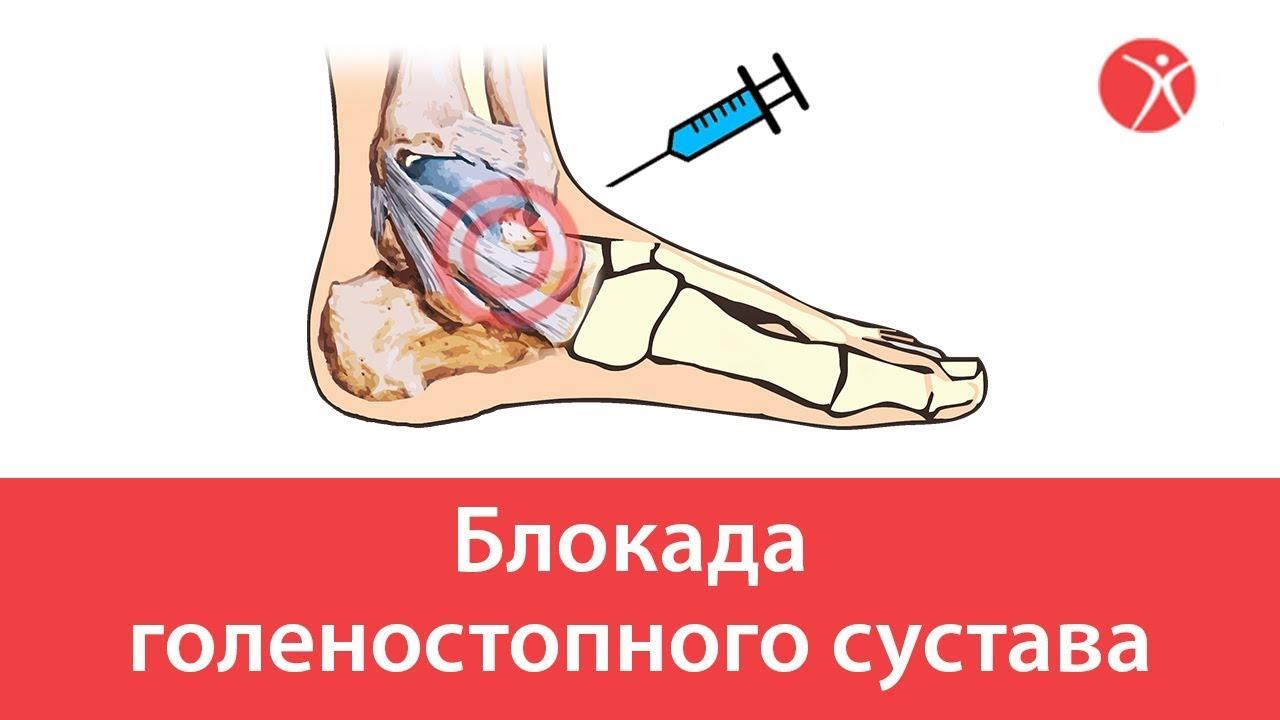 Видео схема блокада голеностопного сустава