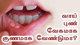 Mouth Ulcer Treatment at Home - Vaai Pun - Health Tips in Tamil
