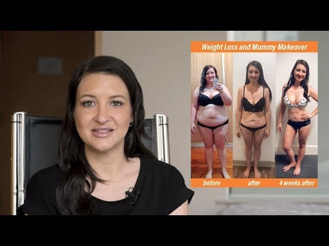 Surgery Makeover Winner Kirsty Shares her Experience!