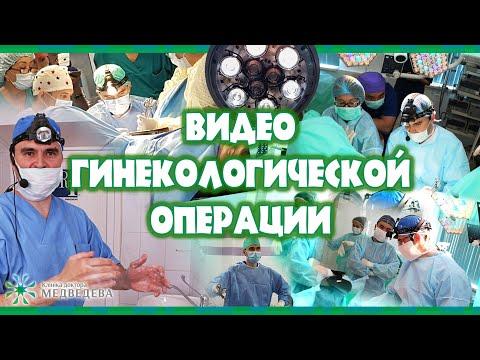 Офисная гистероскопия у женщины с кровомазанием из влагалища